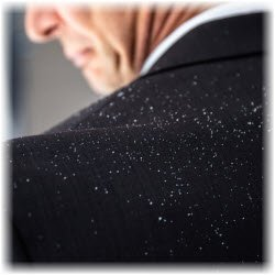 Photo of man with dandruff flakes