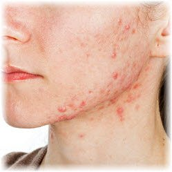 Photo of woman's face with acne