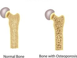 Graphic of bone with osteoporosis