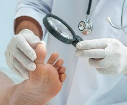 Photo of doctor looking at a foot